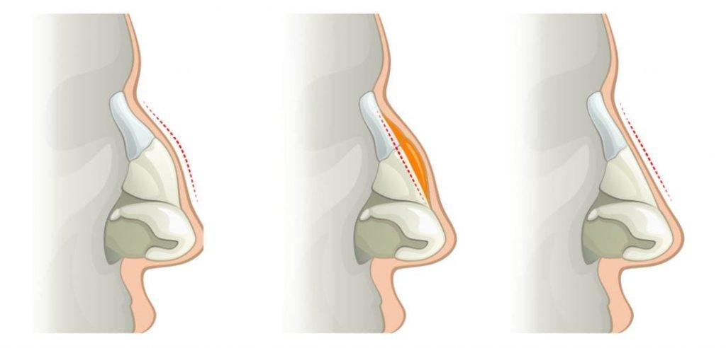 image de la structure osseuse d'un nez