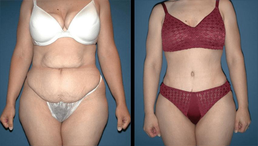 Abdominoplastie en Turquie